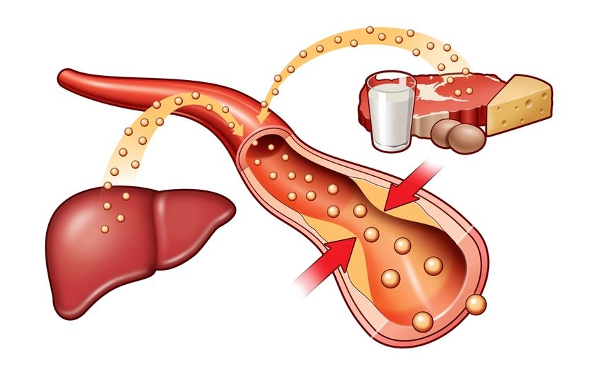 снизить уровень холестерина в крови народные средства