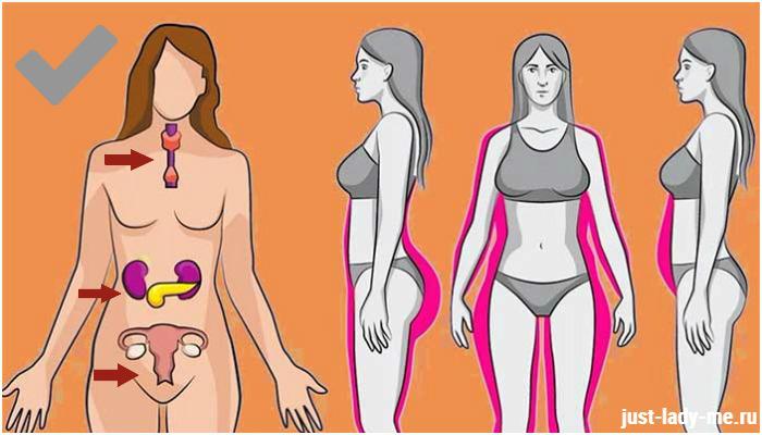 гормональный сбой и лишний вес что делать
